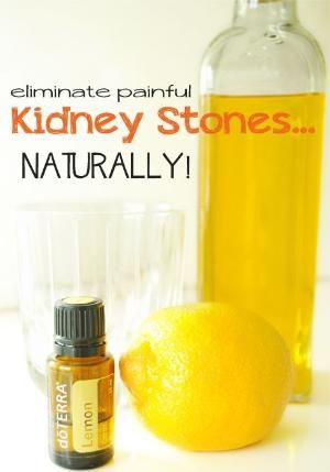 Hallelujah! I hope I never have to use this but I am pinning it just in case! #kidneystonesarenofun Eliminate Kidney Stones...Naturally! #kidneystones by Kim Paige
