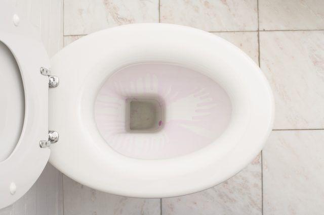 Cómo quitar los anillos marrones y manchas de la taza del inodoro | eHow en Español