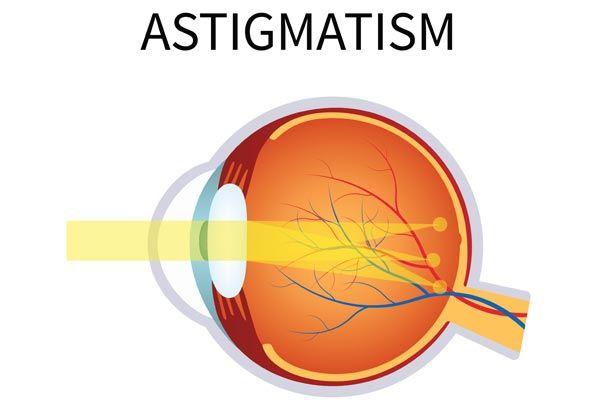 سبب الإستجماتيزم واعراضه وعلاجه موسوعة Health Astigmatism Disease