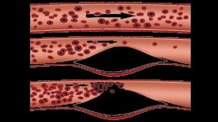 What Is Peripheral Vascular Disease? | Heart Disease