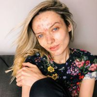 My Pale Skin's Em Ford on how her viral acne video gave her the confidence she'd been searching for her whole life