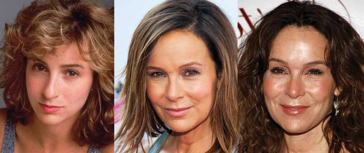jennifer grey plastic surgery before and after photos 2017