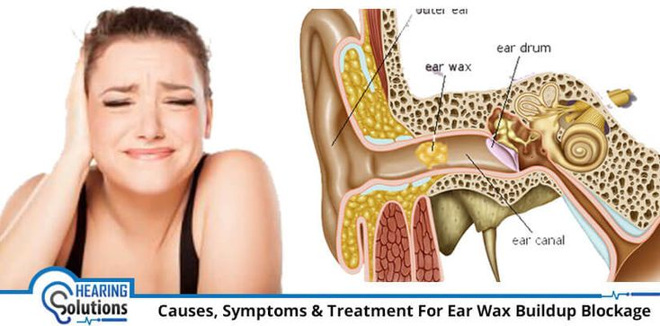 Do excessive ear wax causes hearing loss what are the