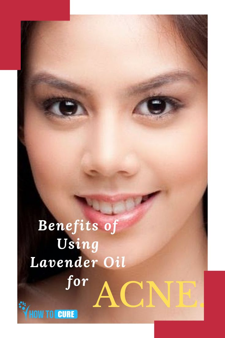 Benefits of Using Lavender Oil for Acne – HowToCure