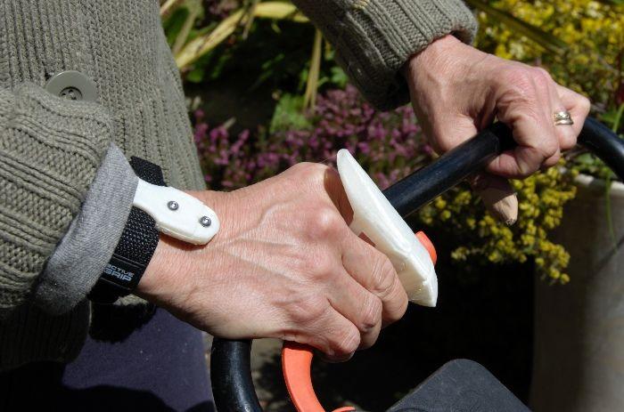 Functional prosthetic finger made by Arcon Prosthetics