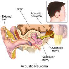 Vestibular schwannoma - Wikipedia, the free encyclopedia