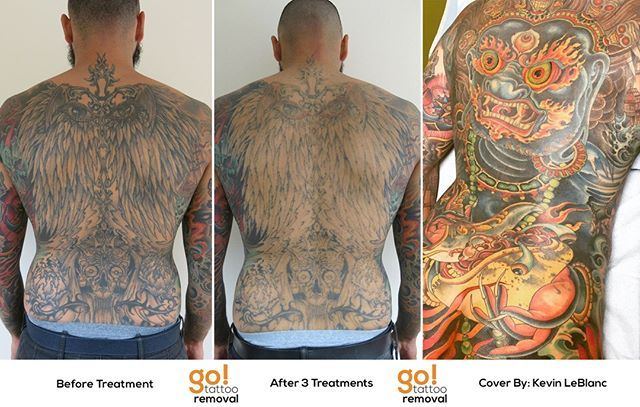 Follow Up From Yesterday S Post This Client Had Us Fade Out Their Whole Back Piece As It Didn T Really Mat Cover Up Tattoos Laser Tattoo Removal Tattoo Removal
