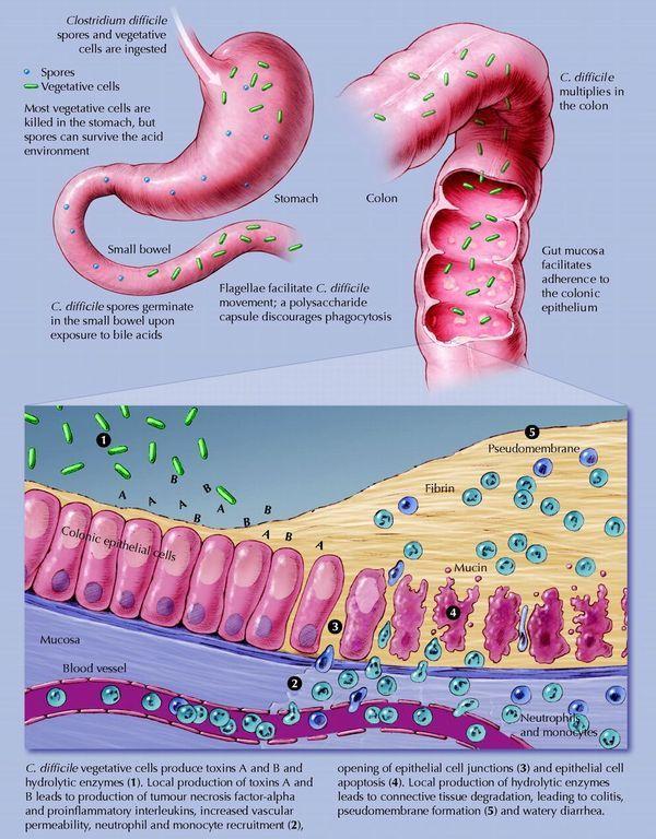Fecal transplants successful for treating C. difficile ... Crohns Disease Diagram