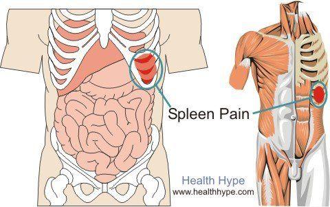 Spleen Pain