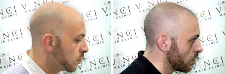 Want to get back your hair line and eradicate your bald spots permanently, effectively, and with no surgery or medication required? We can recreate your natural hairline and fill in those bald areas and cover up your transplant scars quickly, and effectively. #vincihairclinic #hairloss #alopecia #hair #MSP #microscalppigmentation #pigmentation #patternbaldness #SMP #scars #New York #camouflage #scalpmicropigmentation #NYC #LoveNYC #noobligation