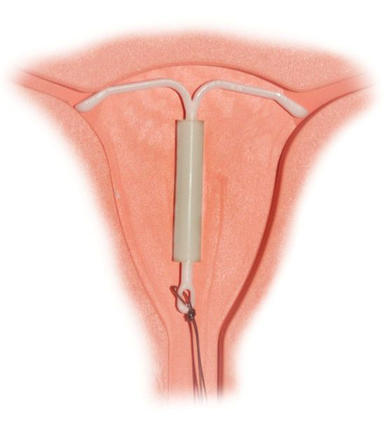 Menstrual cups and IUDs