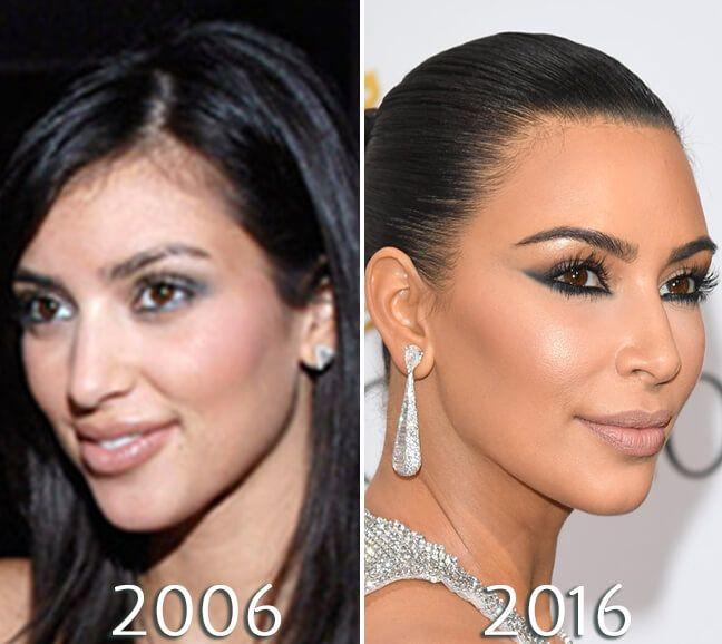 Kim Kardashian Nose Before And After Photo Kim