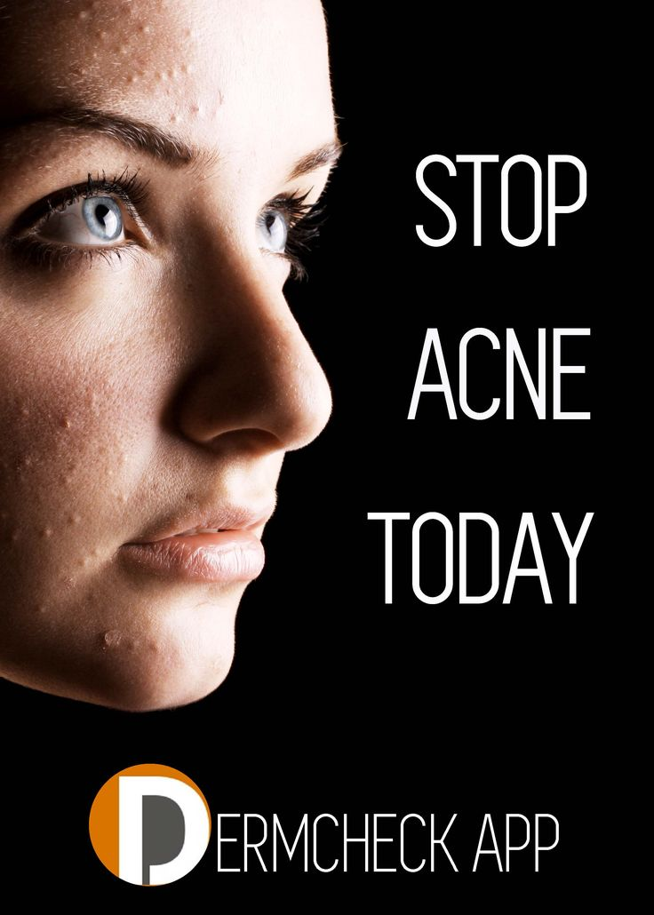 Struggling with acne? Tired of trying at home remedies that aren't working? There's now an answer: DermCheck App. See a dermatologist right through your phone and receive a treatment plan and prescriptions, all without leaving your home!