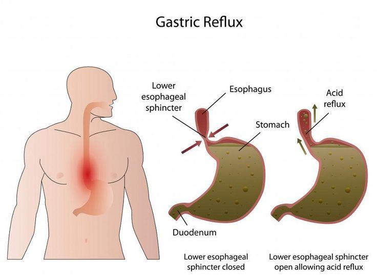 Natural Cure For Acid Reflux Disease