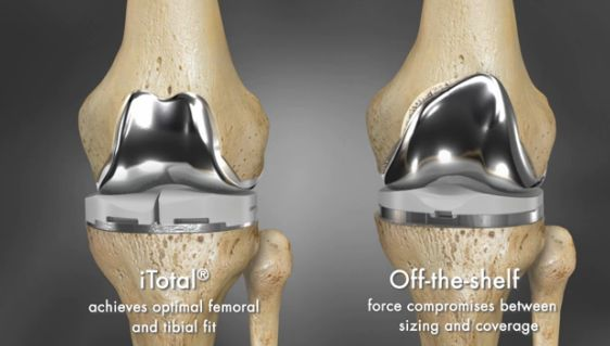 3ders.org - 3D printing brings revolution in knee surgeries | 3D Printer News & 3D Printing News