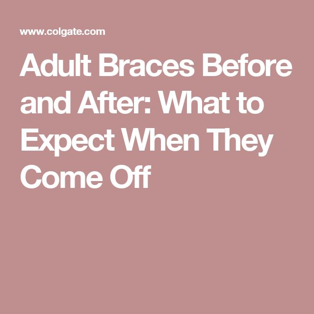 Adult Braces Before and After: What to Expect When They Come Off