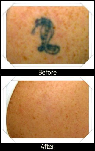 #laser for #tattoo removal, tattoo  removal  el  paso, how much is tattoo laser removal, laser treatment tattoo removal, laser tattoo, tattoo removal, laser tattoo removal, cost to remove tattoo, remove tattoos, how to remove tattoo, laser tattoo removal machine, el  paso  laser  tattoo  removal, removal of tattoos, how to remove tattoos, laser tattoo removal reviews, how to remove a tatoo, tattoo removed, tattoo erase, laser removal of tattoos, new tattoo removal, tattoo removal machine
