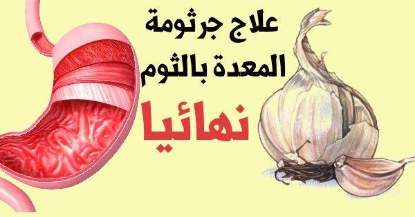 الثوم لعلاج جرثومة المعدة في الطب النبوي لعلاج جرثومة المعدة هناك طرق كثيرة بالطب واستخدام الادوية الموصوفة من الطبيب او عبر الطب البديل والاع Garlic Movies