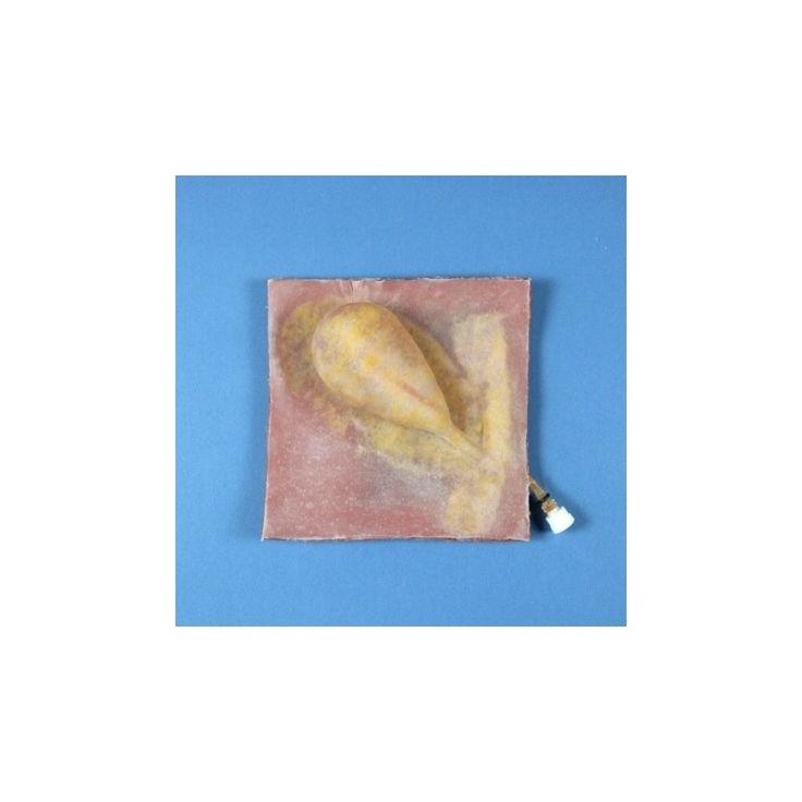 ALT50127 - VÉSICULE BILIAIRE NORMALE Vésicule biliaire normale faisant partie d'une série de quatre modèles très réalistes, de complexité croissante, permettant à l'étudiant de pratiquer l'ablation de la vésicule biliaire. Fabricant : Limbs & Things