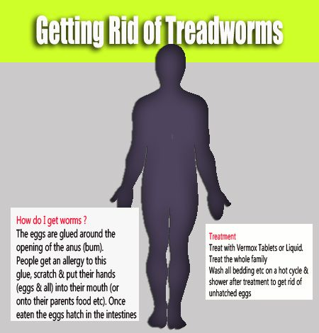 Treadworms - how to treat threadworms - https://www.dpharmacy.ie/dpharmacy/medicines/parasites-bugs-and-infestations/threadworms