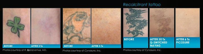 Did you know that Allure has an amazing new procedure to remove tattoos?  Yes, we've finally introduced tattoo removal to our service offering.  PicoSure is the latest and greatest way to remove tattoos with LESS time and fewer treatments than other forms of tattoo removal.  Your tattoo can be removed in just 2-4 treatments! It's fast, easy, and guarantees results in just 1 treatment! Call 586-992-8300 today for your free consultation!