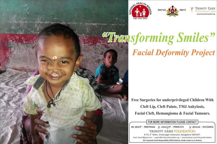 Trinity Care Foundation is providing Free Surgeries for Poor { Children and Young Adults } with Facial Deformities like cleft lip, cleft palate and TMJ Ankylosis ! Free facial deformities and cleft…