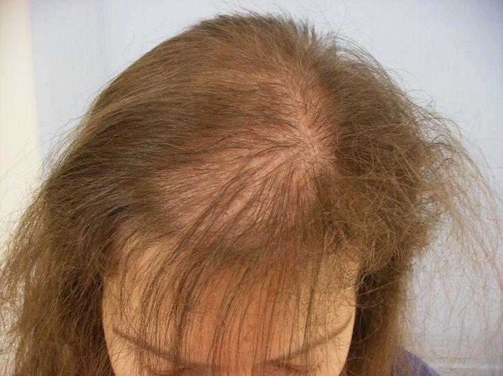 Understanding Your Hair Loss Problem