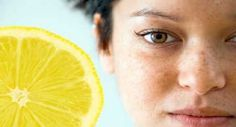 Macchie del viso, rimedi naturali - Idee Green
