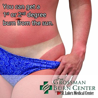 sunburns skin and medical attention Sunburn is literally a flesh burn caused by the ultraviolet radiation of the sun   the following chart can help you determine where you fall in the spectrum of skin   questions or concerns you should see your doctor or health care provider.