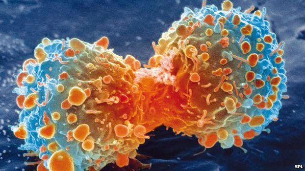 Un traitement d'avant-garde du cancer semble être la raison pour laquelle une poignée de médecins holistiques ont été récemment découverts ''suicidés'' : ce traitement est en train de gagner l'attention du monde en tant que potentiel remède universel au cancer. Et de nouvelles images a...