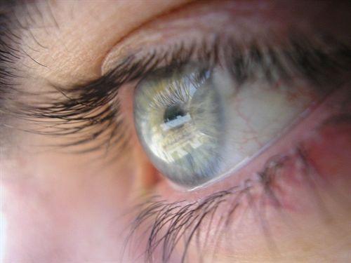 Los residentes de las ciudades más contaminadas tienen un mayor riesgo de síndrome de ojo seco. http://www.farmaciafrancesa.com