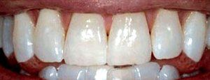 Don't Break the Bank: A Mom's Trick to Whiter Teeth | Consumer Lifestyles - Enrich Your Life