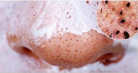 I punti neri ( o comedoni ) sono una conseguenza dell'acne, possono variare il proprio colore dal giallastro al più comune nero, che si sviluppano sulla su