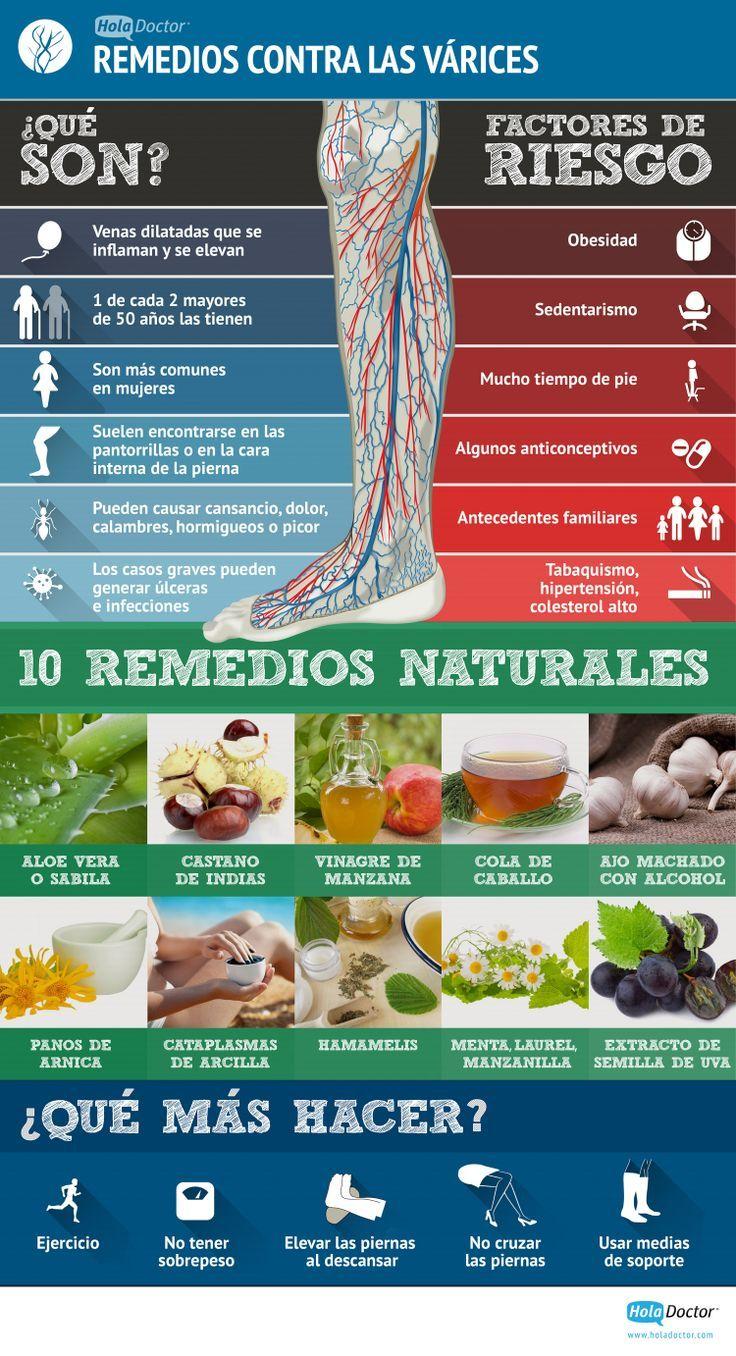 ¿Qué son las varices y cómo se pueden combatir? #remedios #varices #infografía