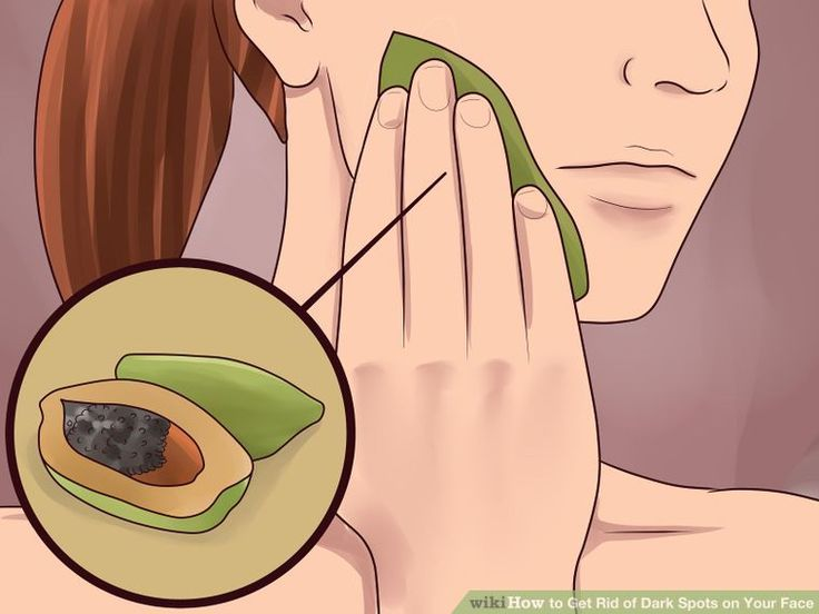 how to get rid of beauty spots wikihow