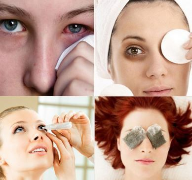 How to Get Rid Of Pink Eye – Fast, Overnight, In Day Home Remedies and Treatment