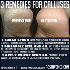 How to Remove Calluses on Feet -PositiveMed   Positive Vibrations in Health