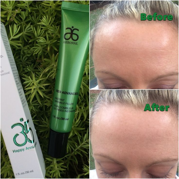 A before and after of my forehead using Arbonne's utterly brilliant RE9 Advanced Instant Wrinkle Filler. Thanks for getting to 35 years Arbonne and continuing to bring out THE BEST products that actually work. #pure #safe #beneficial My Arbonne ID: 613443971