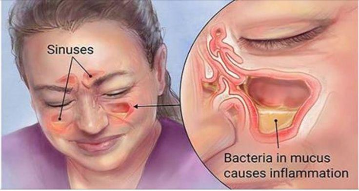 Destrua rapidamente a sinusite com um método simples que usa ingredientes que você tem em casa! | Cura pela Natureza