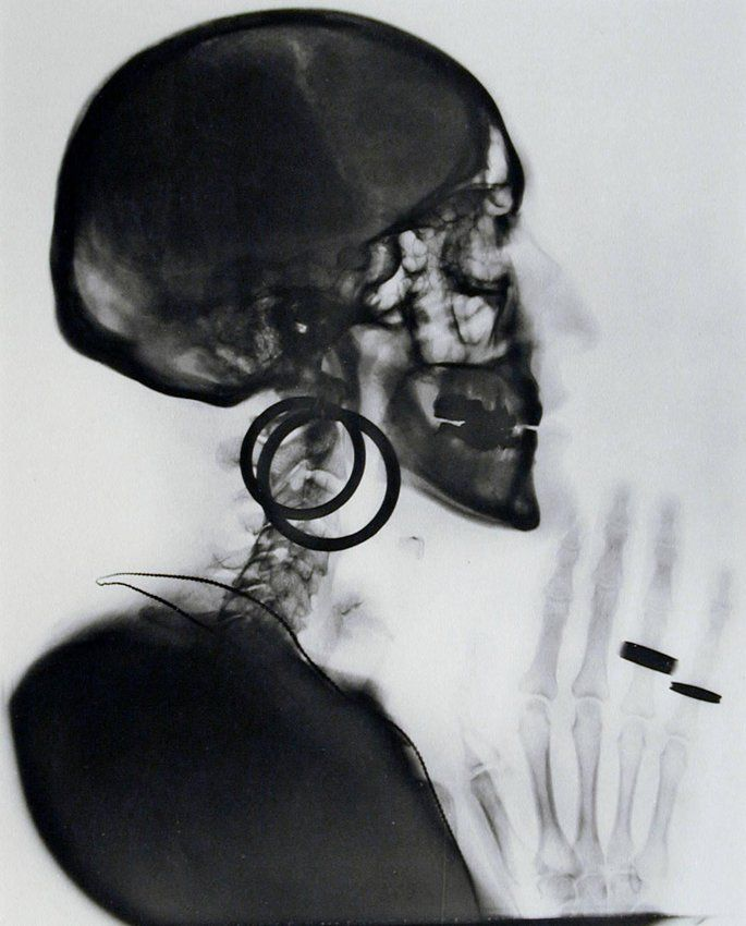 image of X-ray of My Skull
