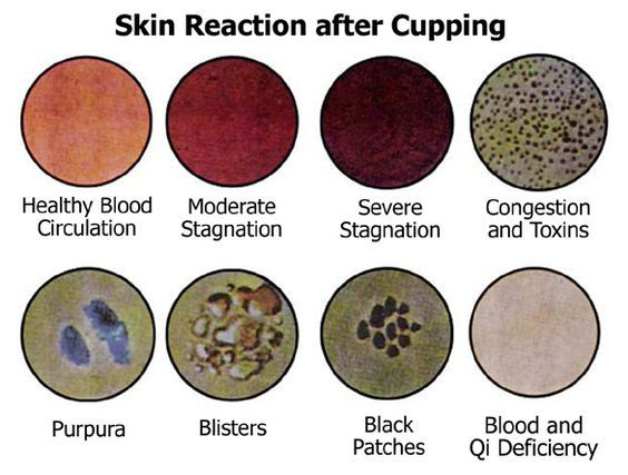 Suction pulls toxins, pathogenic factors, blood poison, dead lymph and cellular debris from deep within the tissues to the surface. These de...