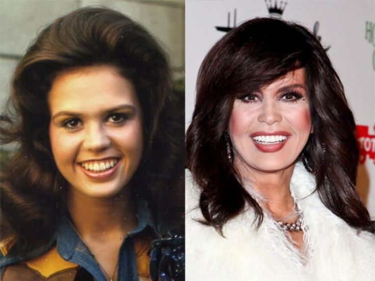 """""""What in the world happened to Marie Osmond's face?! Be it terrible plastic surgery or a blush sneak attack, the former 'Donnie &Marie' star is nearly unrecognizable!"""""""