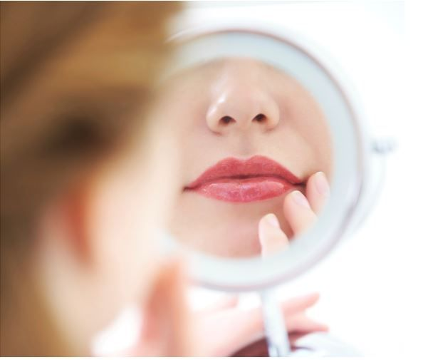 How To Get Rid of Vertical lines Around Your Mouth: Fractional CO2 Laser Resurfacing And Hyaluronic Acid Fillers