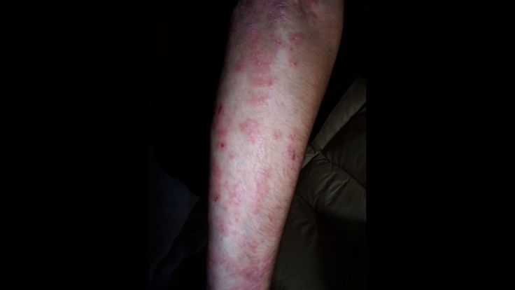 Psoriasis Healed by Inclined Bed Therapy IBT