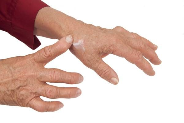 Tratează un neurolog artroza