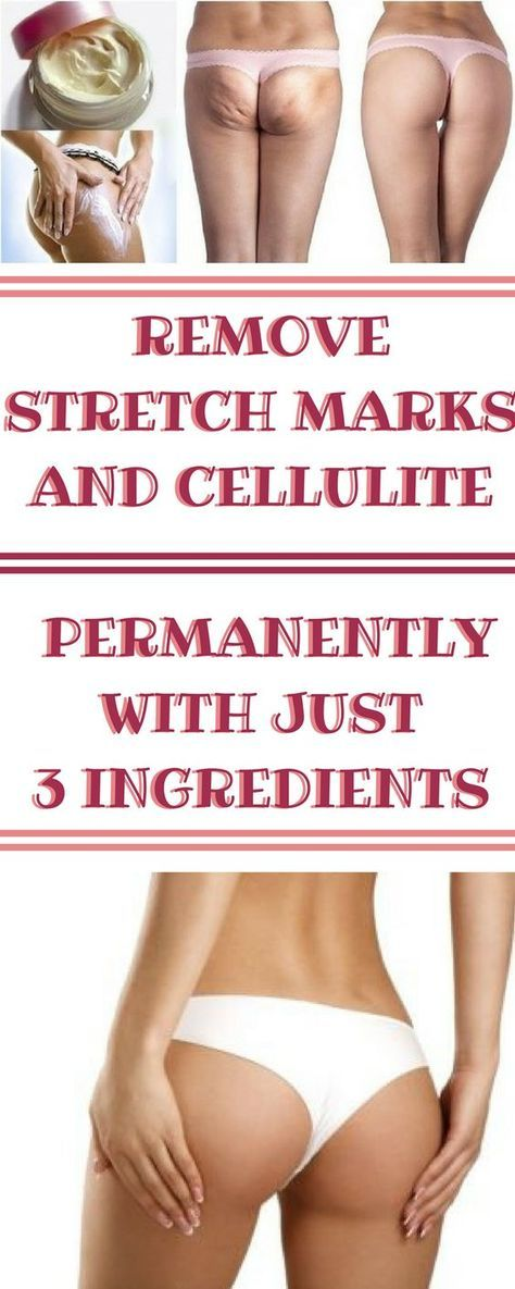 REMOVE STRETCH MARKS AND CELLULITE PERMANENTLY WITH JUST 3 INGREDIENTS