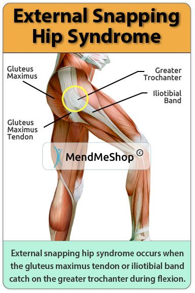 Pin On Back Amp Hip Pain Research