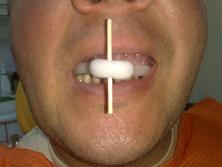 CT Scan Guide for Dental Imlants