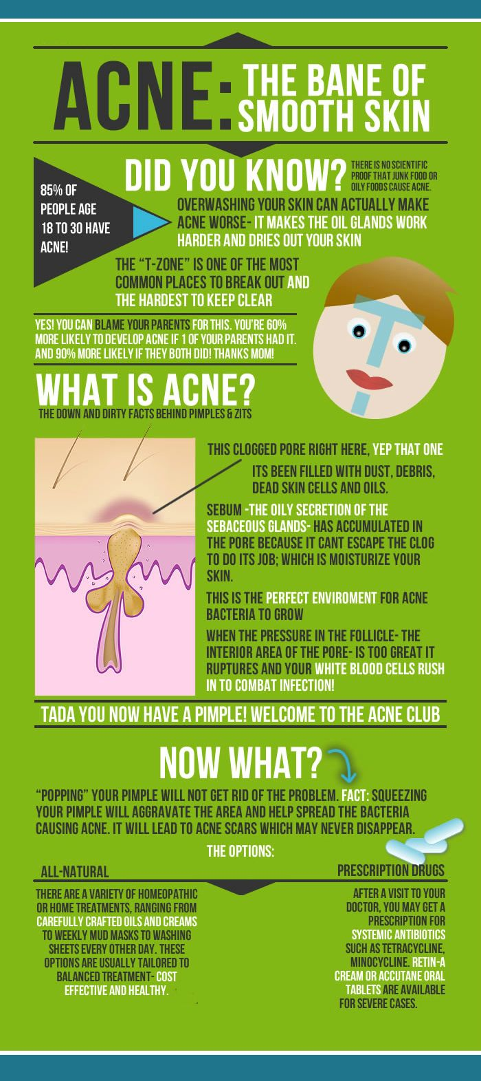 [Infographics]; What is #ACNE ?  Know more about the cause & treatment@ http://goo.gl/hxLqav   #dermatology #health #skincare #London #healthcare #dermatologyLondon