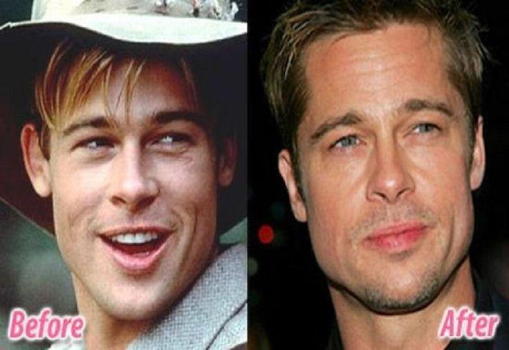 Celebrity Brad Pitt Ear Plastic Surgery Before After - http://plasticsurger.com/celebrity-brad-pitt-ear-plastic-surgery-before-after/